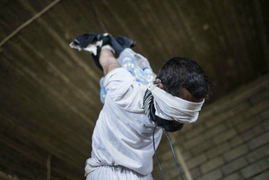 Iraqi Civilian Torture by Iraqi Troops Under U.S. Supervision